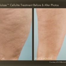 Cellulaze 5